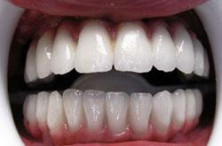 practice case studies for dental hygiene