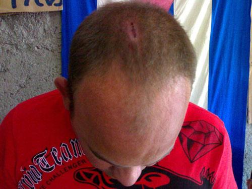 La pedrada en la cabeza de Héctor Duniesky Bermudes Santana