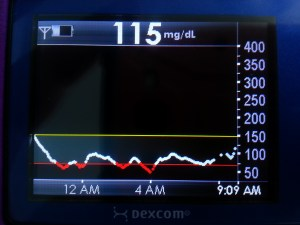 Dexcom CGM low night