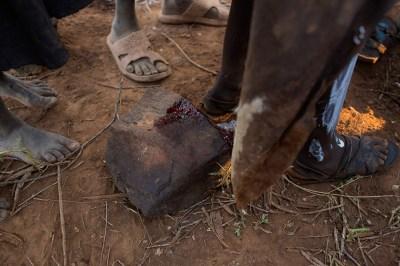 omarion circumcision