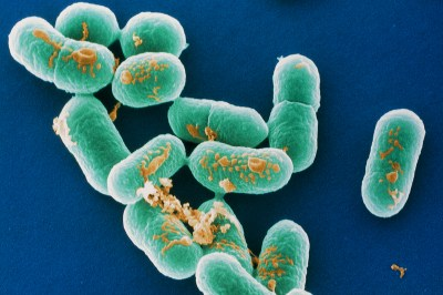 Source of world's biggest listeria outbreak still unknown | New Scientist
