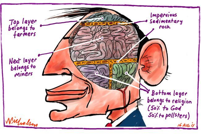 Tony Abbott's brain scan goes public !      (Tw: #Auspol )