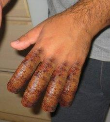 http://i2.wp.com/ddppchicago.files.wordpress.com/2009/09/sausage_fingers.jpg?resize=227%2C250