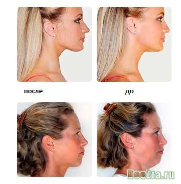 kosmeticheskie-procedury