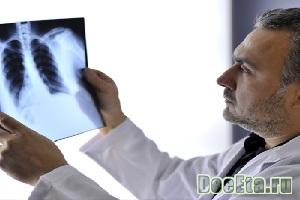 hronicheskii-bronhit