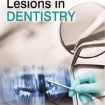 Mucocutaneous Lesions in Dentistry