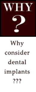 Why consider dental implants?