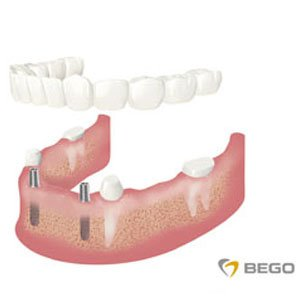 uzupełnienie wszystkich zębów - bezzębie
