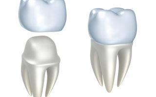 Dentalogy All Porcelain Crown - Mahkota Porselen 6