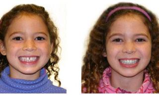 Dentalogy Dental Care - Kawat Gigi Anak 2