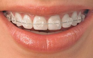 Dentalogy Dental Care - Kawat Gigi Transparan, Sapphire Braces 5