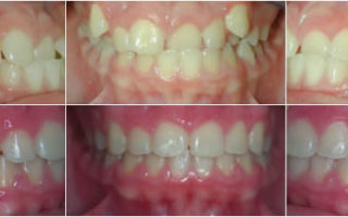 Dentalogy Dental Care - Kawat Gigi, behel gigi 19