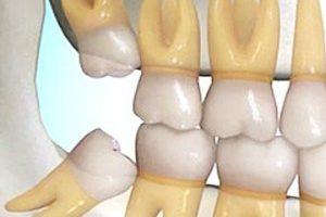 Dentalogy Dental Care - Operasi Gigi Bungsu, Wisdom Tooth 4