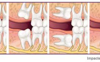 Dentalogy Dental Care - Operasi Gigi Bungsu, Wisdom Tooth 7