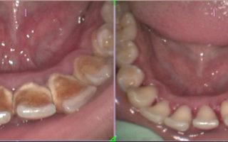 Dentalogy Dental Care - Pembersihan karang gigi, teeth scaling polishing 1