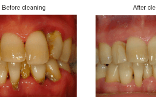Dentalogy Dental Care - Pembersihan karang gigi, teeth scaling polishing 12