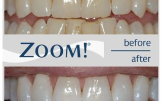 Dentalogy Dental Care - Pemutihan Gigi, Philips Zoom 10