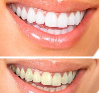 Dentalogy Dental Care - Pemutihan Gigi, Philips Zoom 3