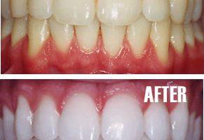 Dentalogy Dental Care - Pemutihan Gigi, Philips Zoom 6