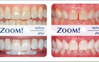Dentalogy Dental Care - Pemutihan Gigi, Philips Zoom 8