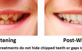 Dentalogy Dental Care - Pemutihan Gigi, Take home tray 9