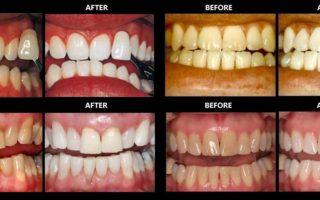Dentalogy Dental Care - Perawatan Gigi Perokok 3