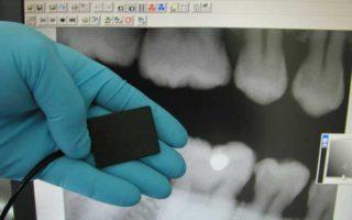 Dentalogy Dental Care - Rontgen Digital, Digital Xray 5