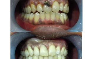 Dentalogy Dental Care - Tambal Lubang Gigi Estetik 1