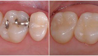 Dentalogy Dental Care - Tambal Lubang Gigi Estetik 4