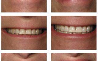 Dentalogy Dental Care - Wedding Whitening Opalescence 4