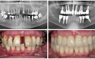 Dentalogy Dental Implant - Implan Gigi12