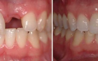 Dentalogy Dental Implant - Implan Gigi16