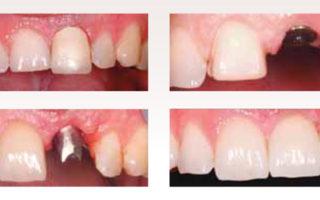 Dentalogy Dental Implant - Implan Gigi 17