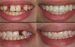 Dentalogy Dental Implant - Implan Gigi5