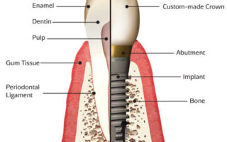Dentalogy Dental Implant - Implan Gigi7