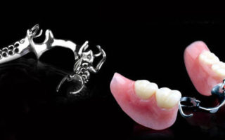 Dentalogy Denture - Gigi Palsu Lepasan 9