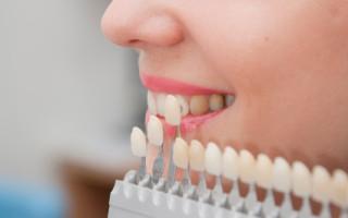 Dentalogy Porcelain Veneer - Gigi Vinir Porselen 02