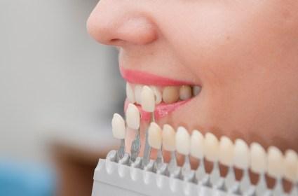 Pemutihan Gigi (Tooth Whitening)