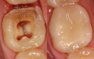 Dentalogy Root Canal Treatment - Perawatan Saluran Akar 1
