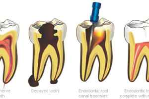 Dentalogy Root Canal Treatment - Perawatan Saluran Akar 3
