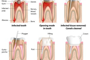 Dentalogy Root Canal Treatment - Perawatan Saluran Akar 9