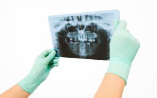 Dentalogy Tooth Extraction - Pencabutan Gigi 10