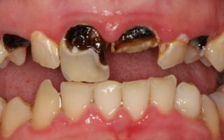 Dentalogy Tooth Extraction - Pencabutan Gigi 8