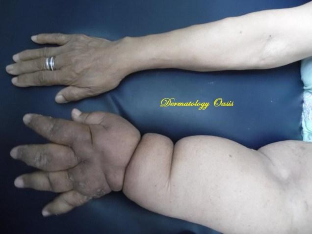 Postmastectomy lymphangioma circumscriptum