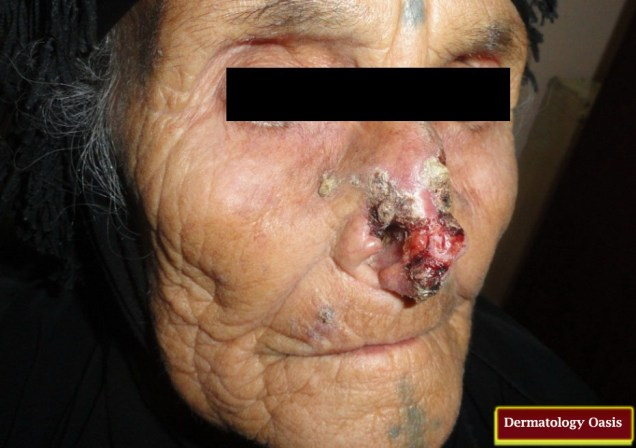 Destructive Basal Cell Carcinoma