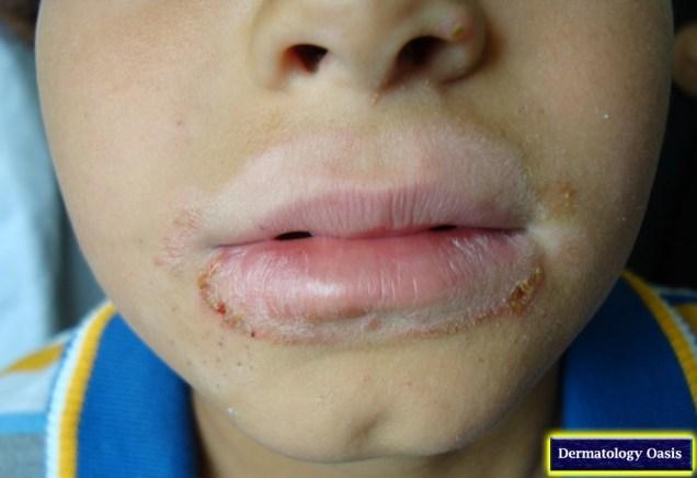 Lip-licker dermatitis
