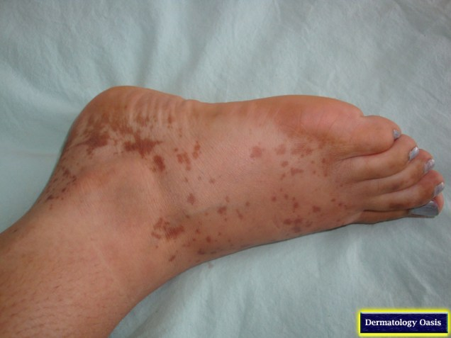 Post-lichen planus hyperpigmentation