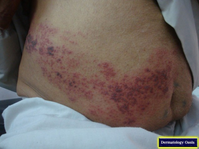 Severe herpes zoster