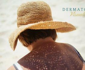 Fotoprotección- clave en la prevención del cáncer de piel