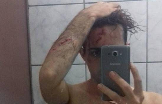 Jovem gay é agredido com pedradas em Balneário Camboriú